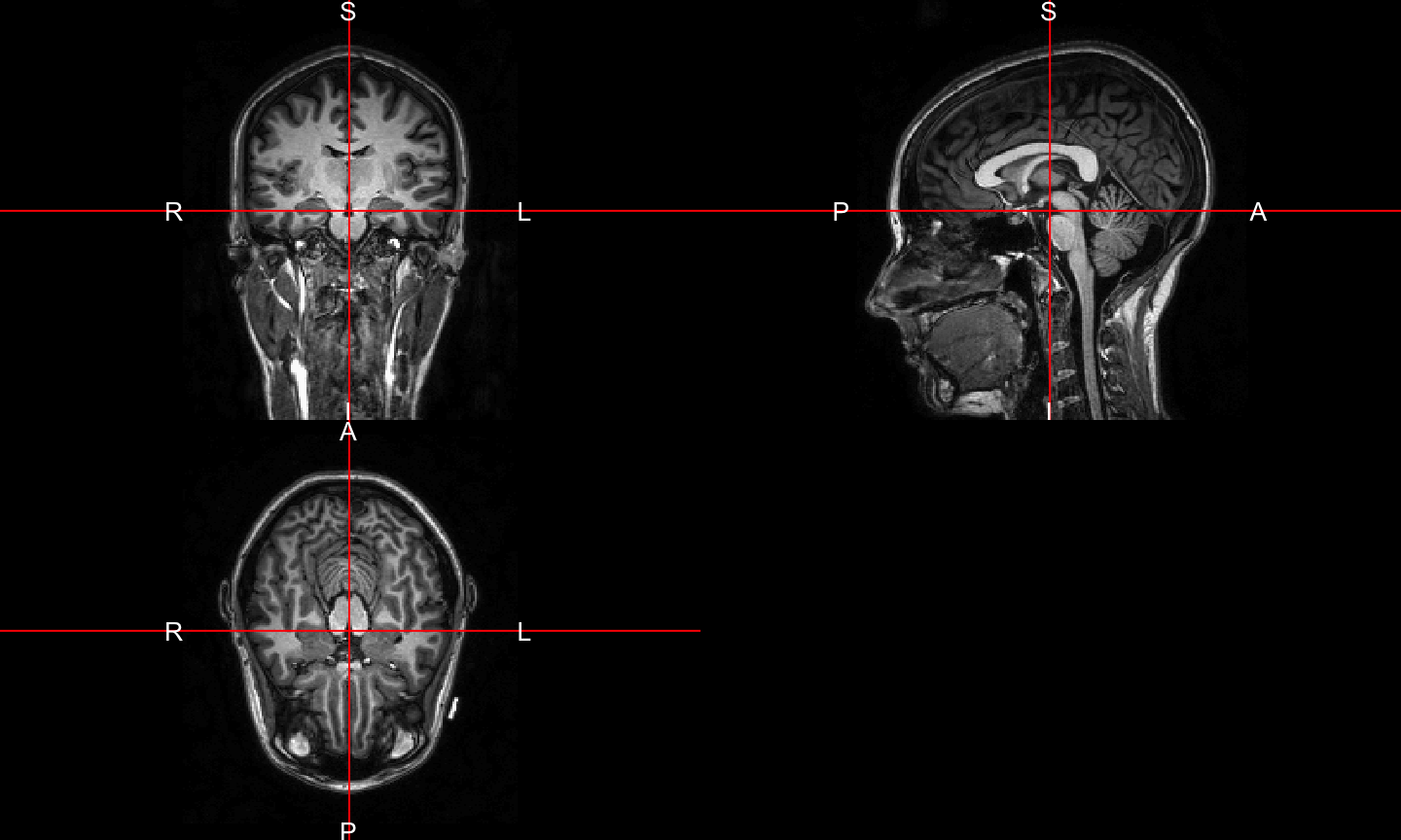 Neuroconductor: Medical Image Analysis in R