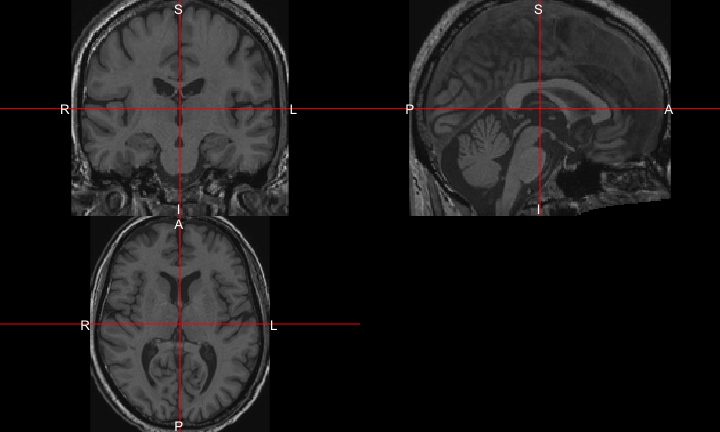 Neuroconductor Example: fMRI Task Processing